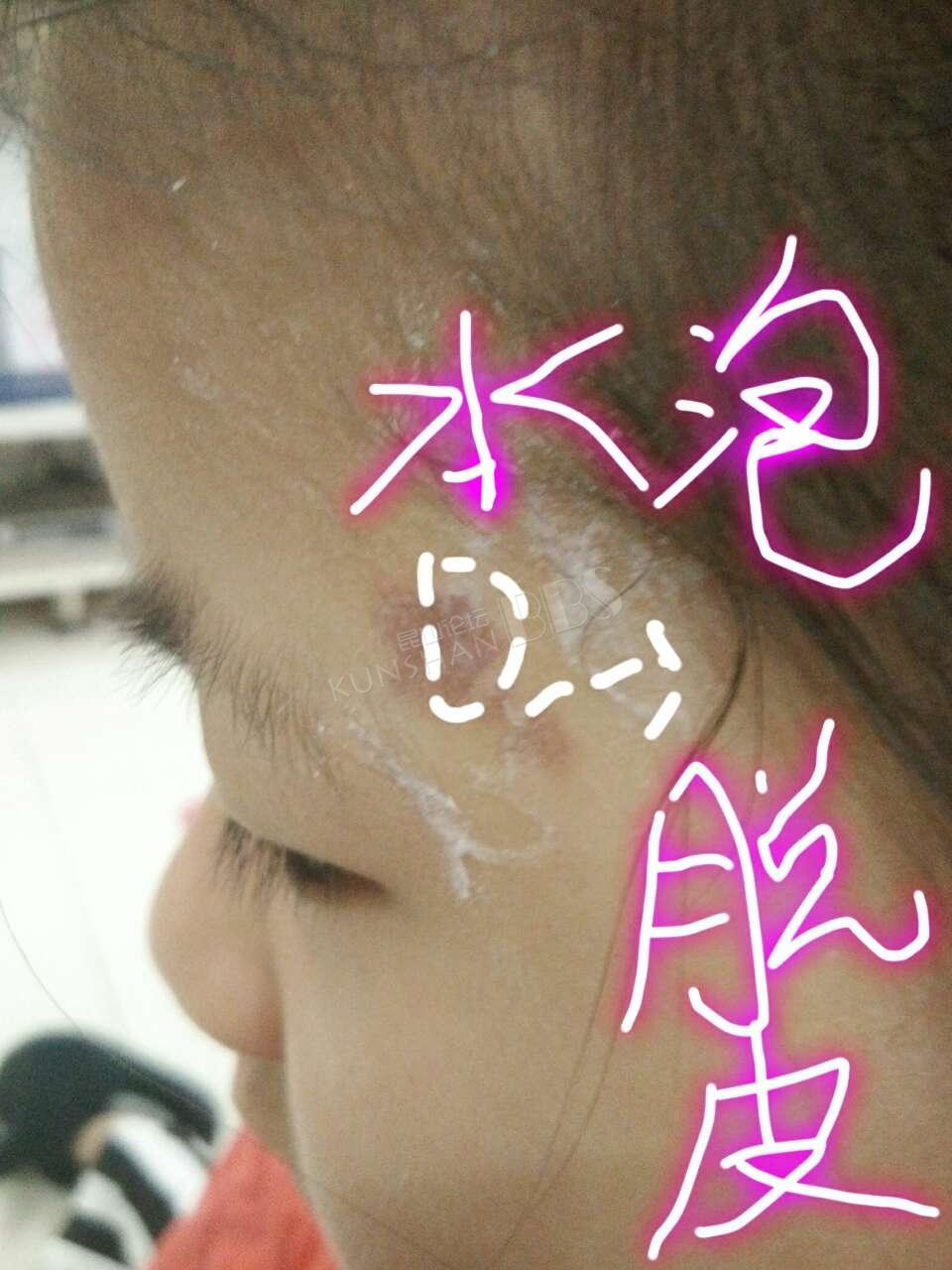 昆太路的柠萌私家儿童摄影 卷发棒把我女儿烫伤 要图片