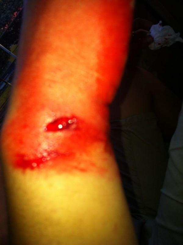 就发高烧,整个手臂到现在还是一直流血,好几处伤口.